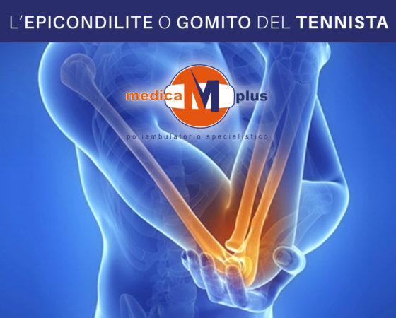 L'epicondilite o gomito del tennista
