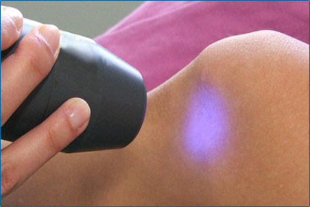 laserterapia-img1